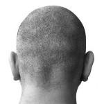 Faire repousser les cheveux grâce aux cellules souches