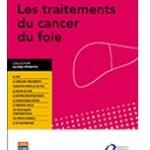 Un guide sur les traitements du cancer du foie