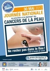 Cancers de la peau: journée nationale de dépistage le jeudi 30 mai 2013