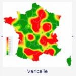 Varicelle : une activité forte dans plusieurs régions françaises