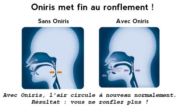 stop aux ronflements