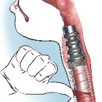 Première implantation d'un larynx artificiel chez l'homme