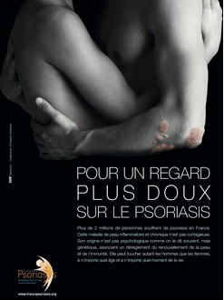 campagne psoriasis