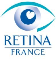 Retina France