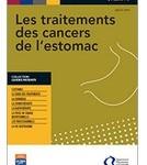 Un guide sur les traitements des cancers de l'estomac