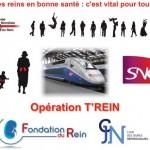 T'REIN du REIN : Michel Chevalet et Fabrice Luchini soutiennent le dépistage des maladies rénales