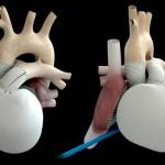 Un coeur artificiel Carmat implanté chez un 3e patient