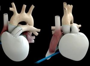 Coeur artificiel Carmat : le 2e patient implanté est décédé
