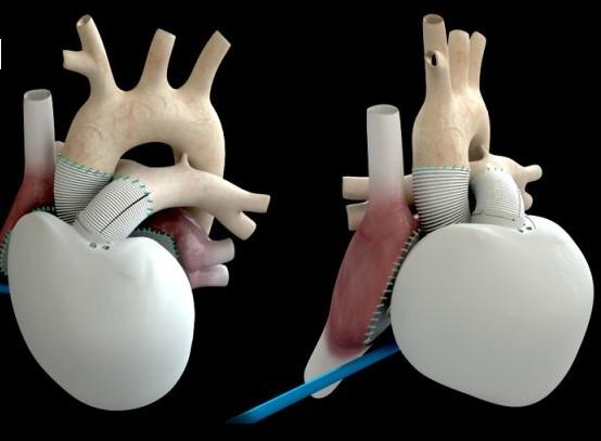 Le 3ème patient implanté du cœur artificiel Carmat est rentré chez lui