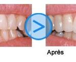 La chirurgie esthétique dentaire aussi abordable en France qu'à l'étranger