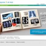 « Les rayons X et moi », une campagne pour mieux comprendre