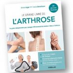 Arthrose : un guide pratique et illustré