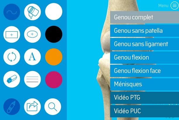 Une appli avec vidéos en 3D pour expliquer aux patients leur opération chirurgicale du genou ou de la hanche