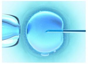 Assistance médicale à la procréation : trois techniques possibles