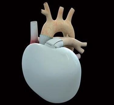 L'essai clinique du Coeur artificiel de CARMAT va pouvoir reprendre